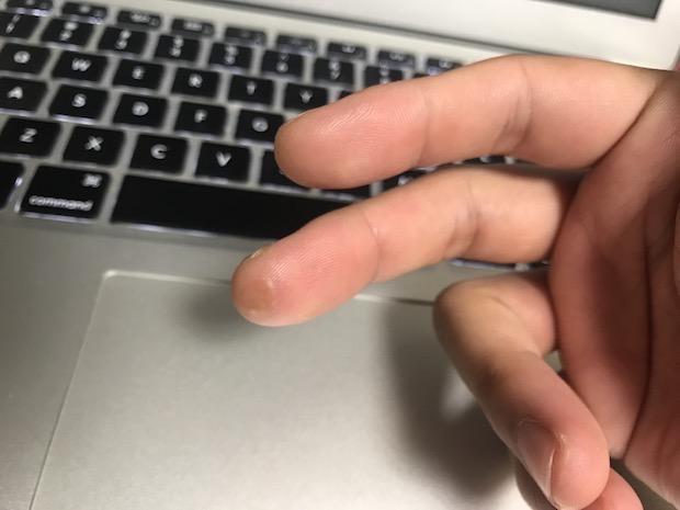 ベースの指弾きでできた水ぶくれが治った